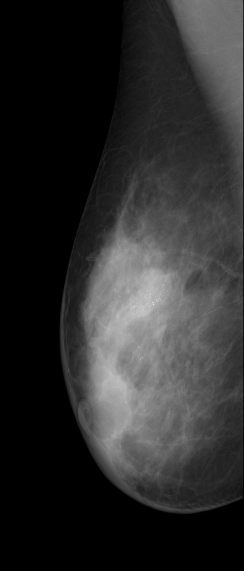 Mammography MLO
