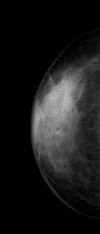 Mammography CC