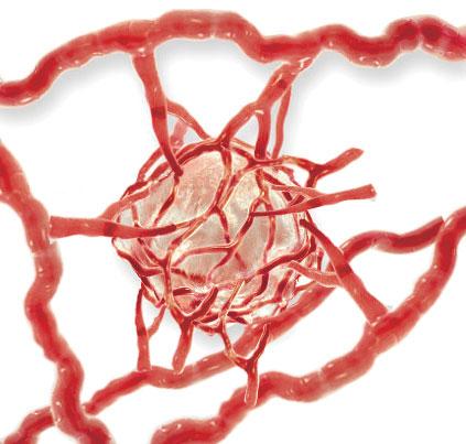 Tumor Angiogenesis
